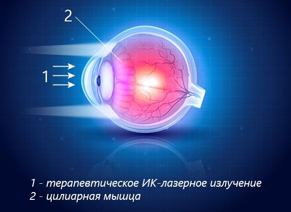 Технологии снятия спазма посредством ИК-лазерного воздействия