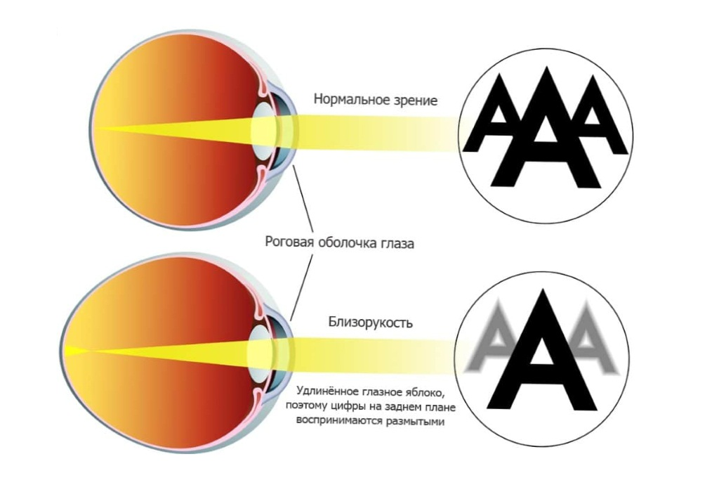 Увеличением размера глазного яблока